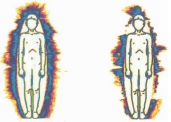 deformacii-biopole